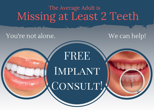 Implants Patient Offer